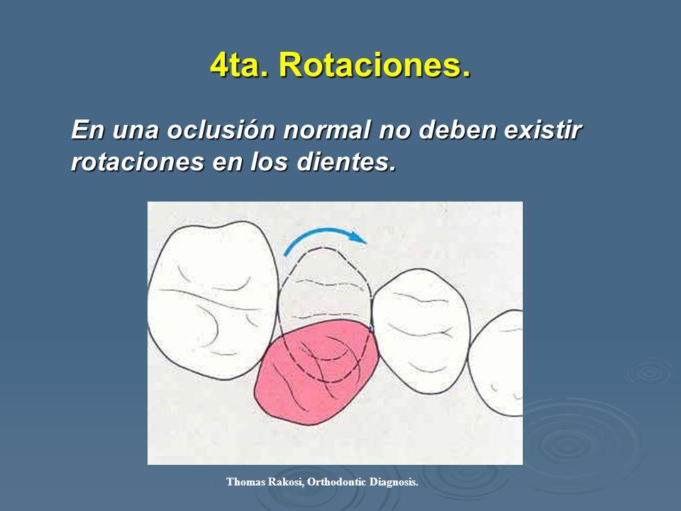 4ta. Rotaciones. En una oclusión normal no deben existir