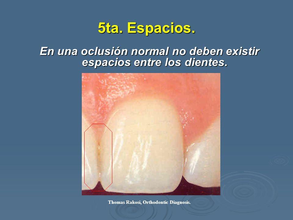 En una oclusión normal no deben existir espacios entre los dientes.