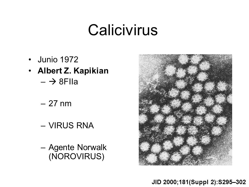 Calicivirus Junio 1972 Albert Z. Kapikian  8FIIa 27 nm VIRUS RNA