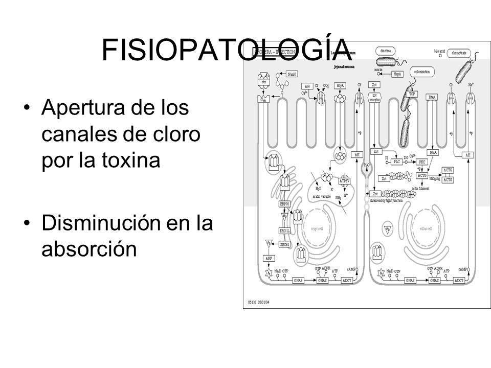 FISIOPATOLOGÍA Apertura de los canales de cloro por la toxina
