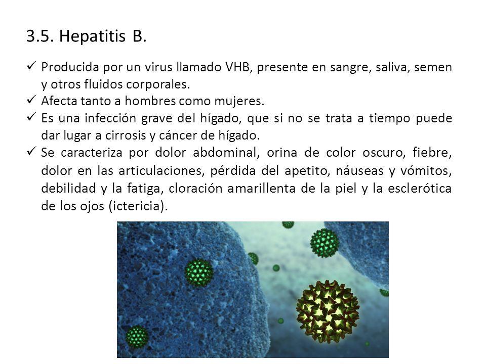 3.5. Hepatitis B. Producida por un virus llamado VHB, presente en sangre, saliva, semen y otros fluidos corporales.