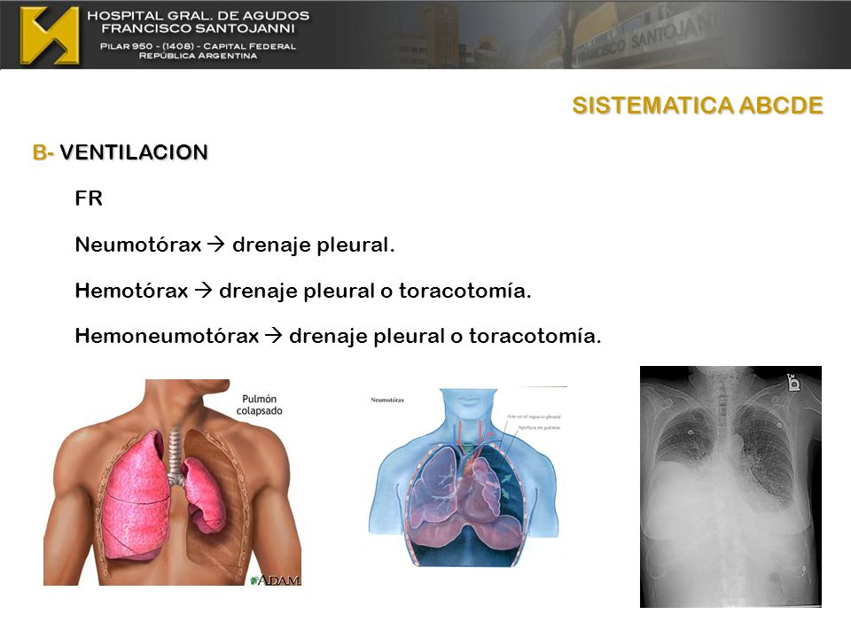 SISTEMATICA ABCDE B- VENTILACION FR Neumotórax  drenaje pleural.