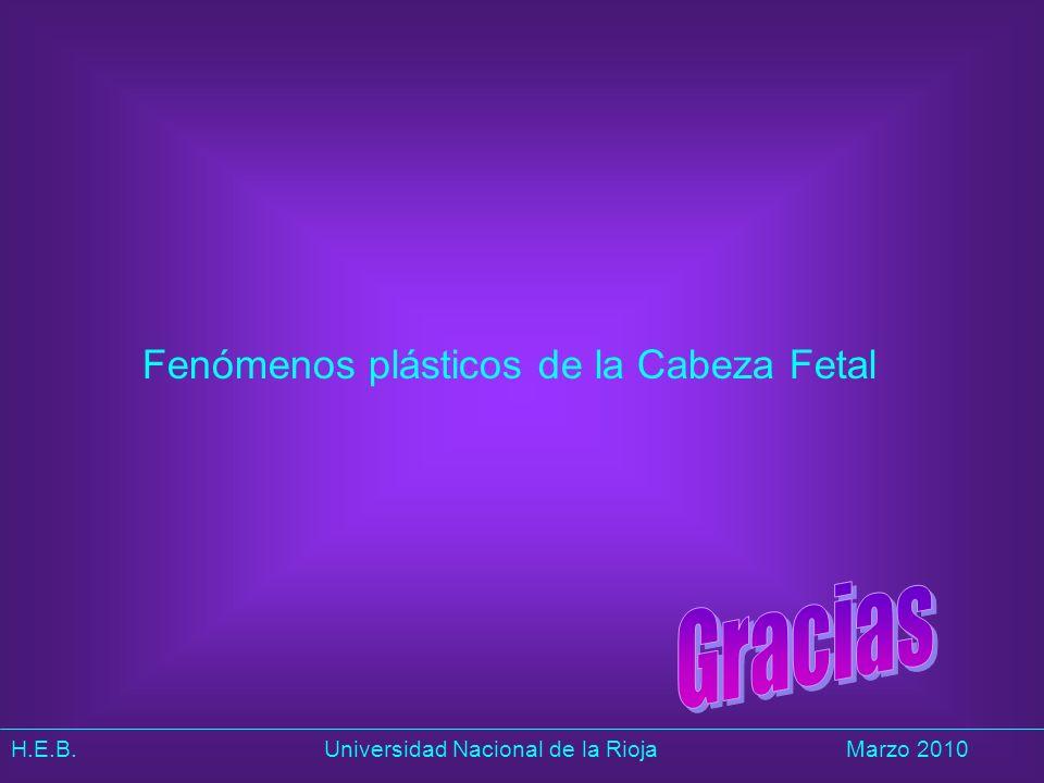 Fenómenos plásticos de la Cabeza Fetal