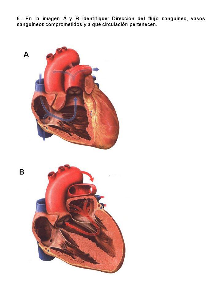 6.- En la imagen A y B identifique: Dirección del flujo sanguíneo, vasos sanguíneos comprometidos y a qué circulación pertenecen.