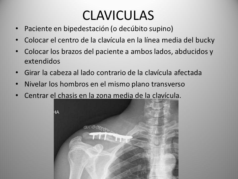 CLAVICULAS Paciente en bipedestación (o decúbito supino)