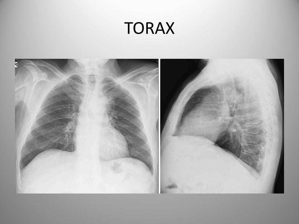 TORAX