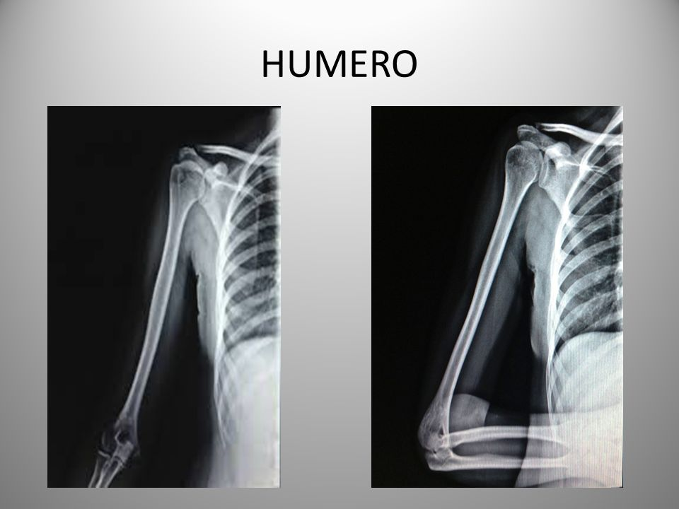 HUMERO