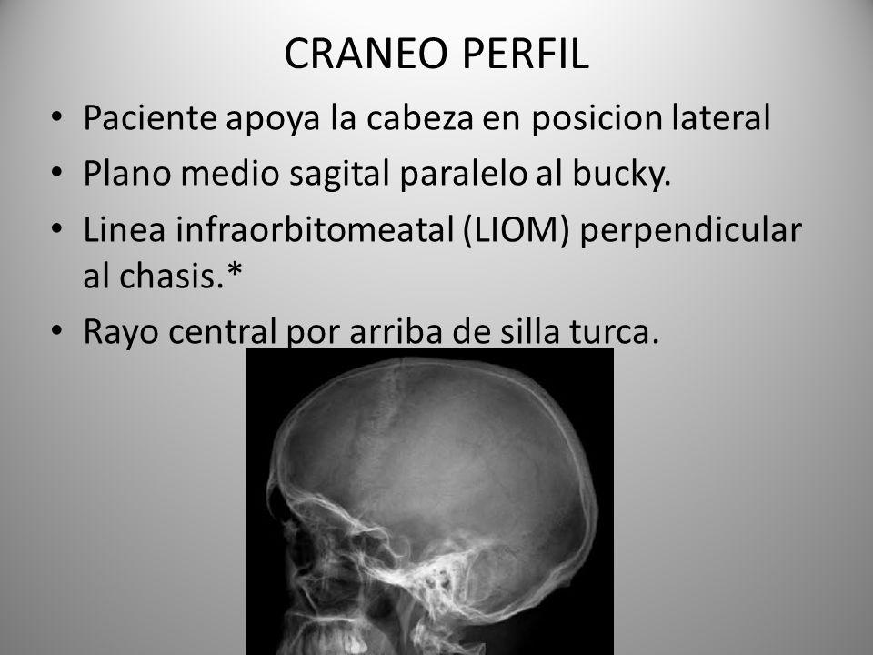 CRANEO PERFIL Paciente apoya la cabeza en posicion lateral