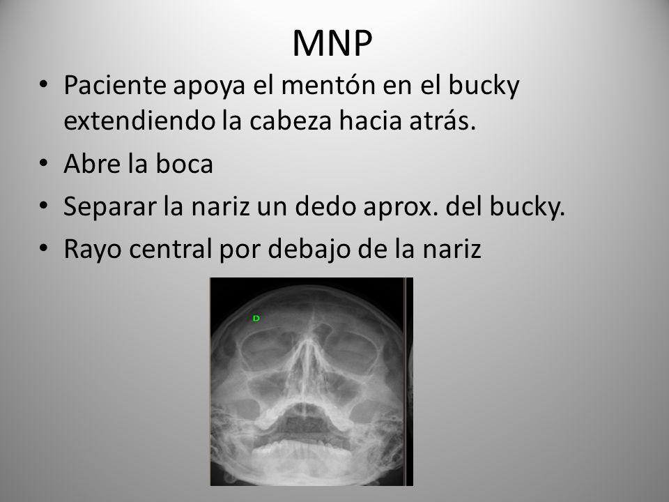 MNP Paciente apoya el mentón en el bucky extendiendo la cabeza hacia atrás. Abre la boca. Separar la nariz un dedo aprox. del bucky.