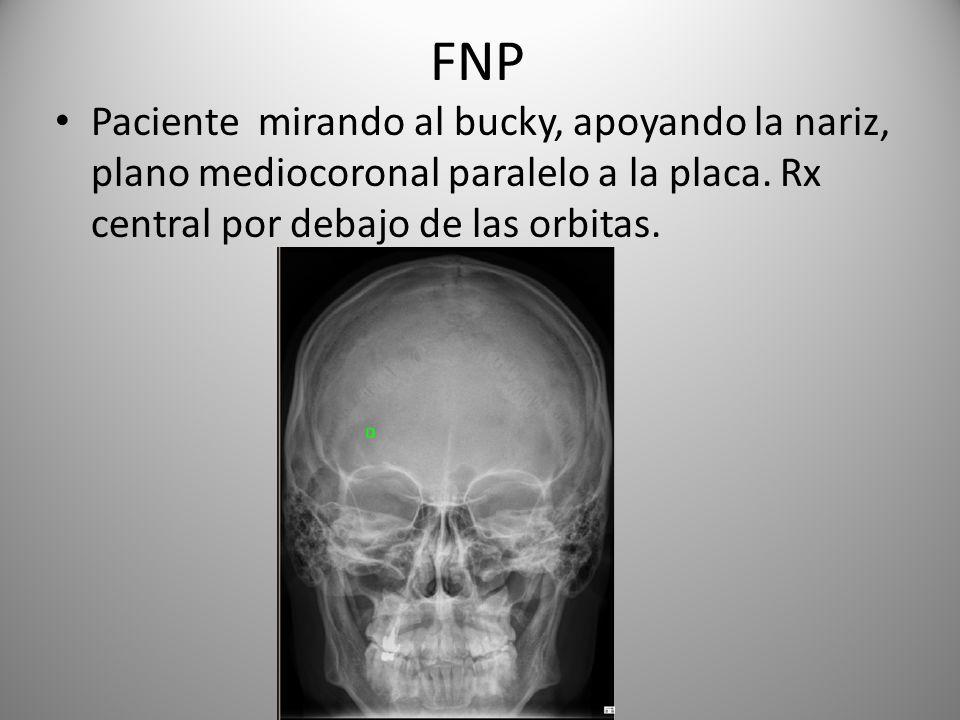 FNP Paciente mirando al bucky, apoyando la nariz, plano mediocoronal paralelo a la placa.