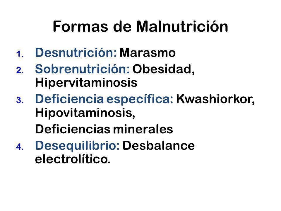 Formas de Malnutrición