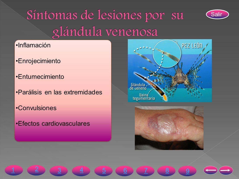 Síntomas de lesiones por su glándula venenosa