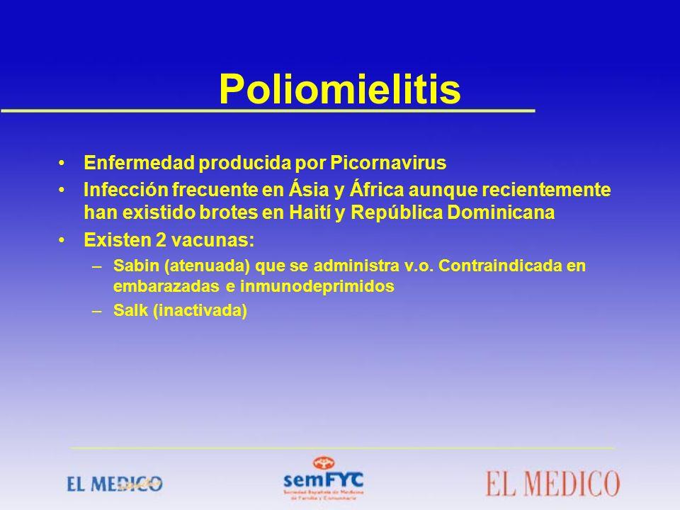 Poliomielitis Enfermedad producida por Picornavirus