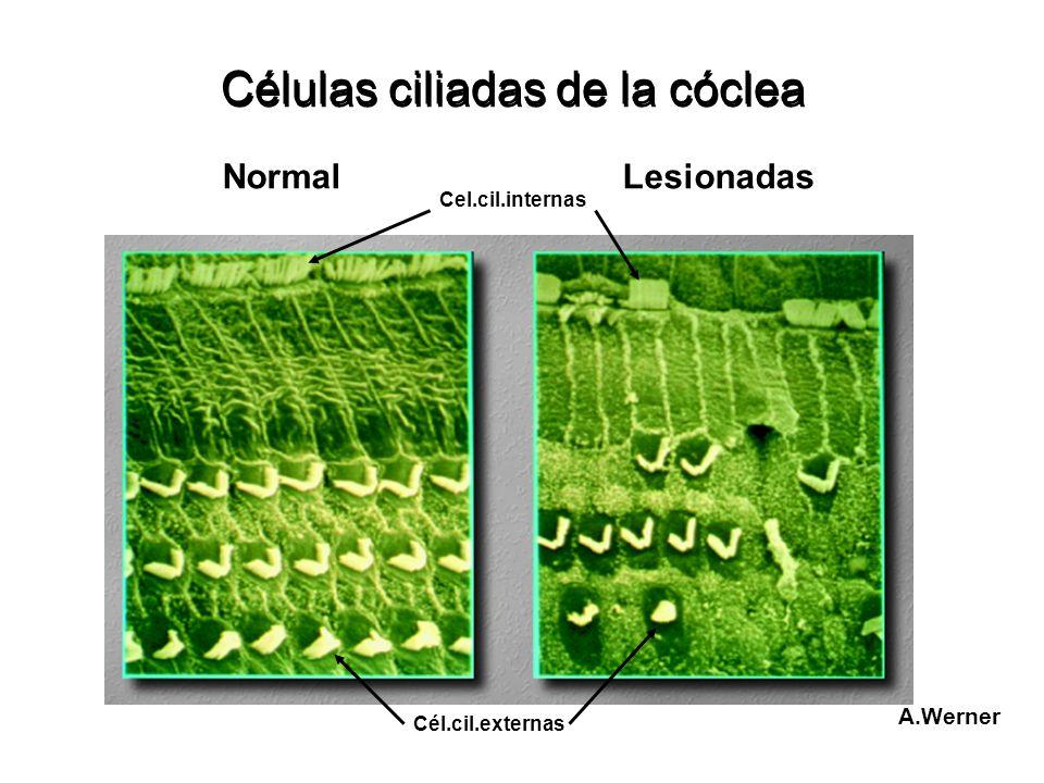Células ciliadas de la cóclea