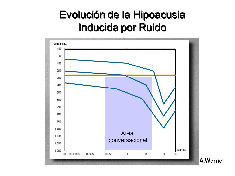 Evolución Evolución de la Hipoacusia de la Hipoacusia