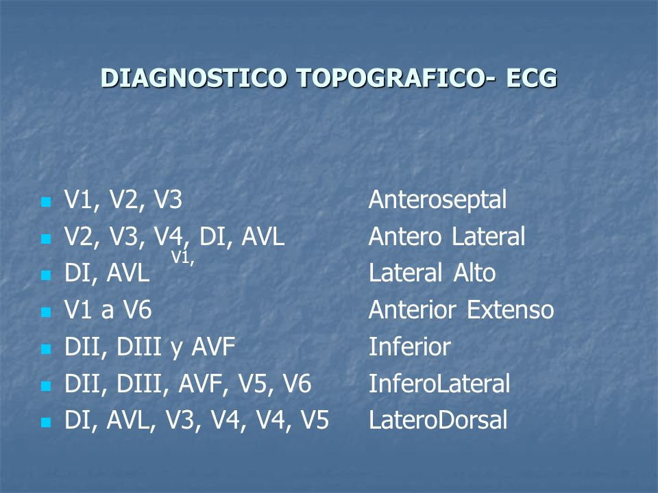 DIAGNOSTICO TOPOGRAFICO- ECG
