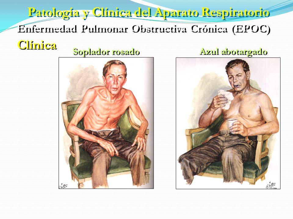 Patología y Clínica del Aparato Respiratorio