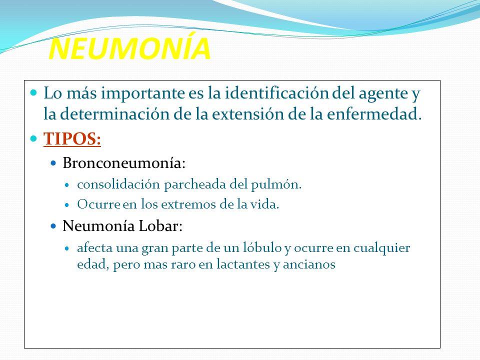 NEUMONÍALo más importante es la identificación del agente y la determinación de la extensión de la enfermedad.