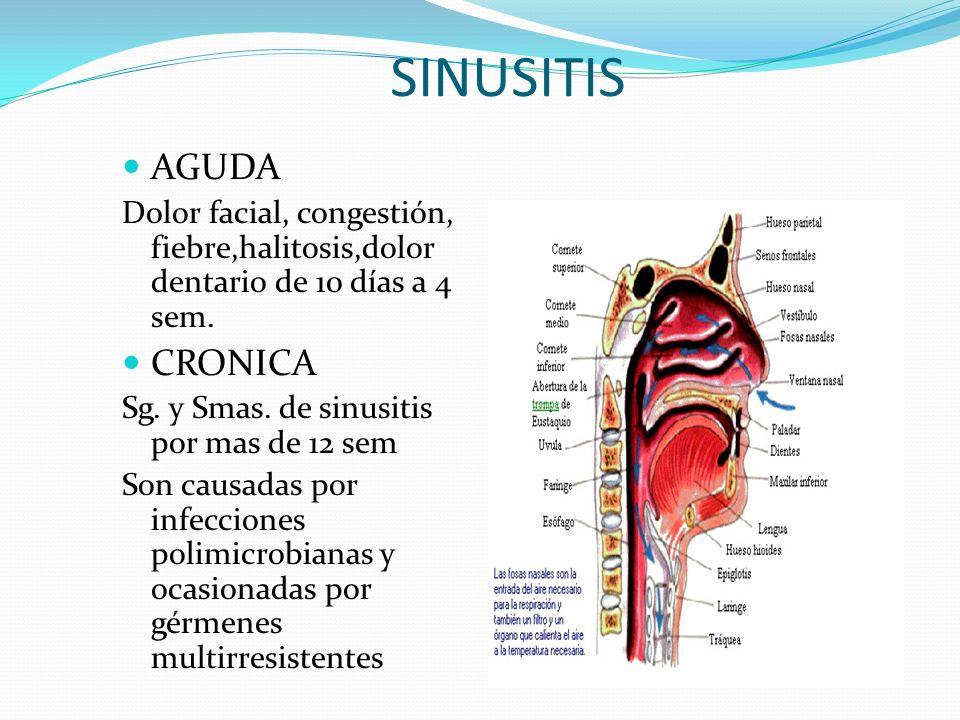 SINUSITIS AGUDA CRONICA