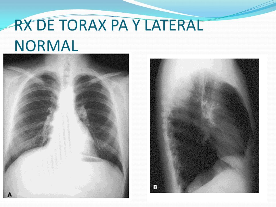 RX DE TORAX PA Y LATERAL NORMAL
