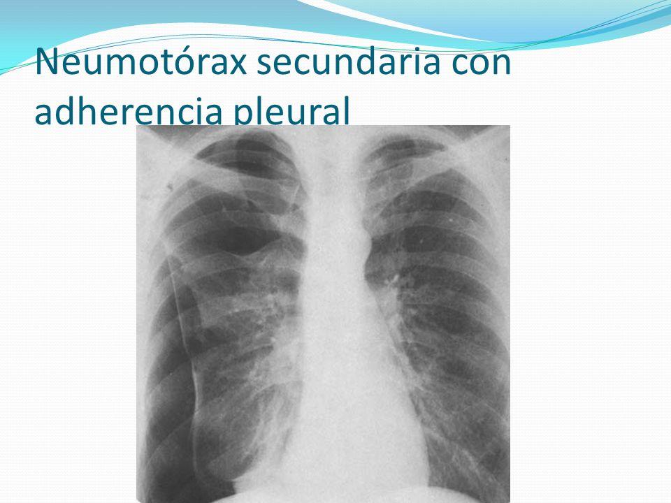 Neumotórax secundaria con adherencia pleural