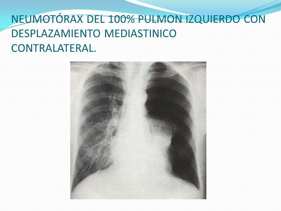 NEUMOTÓRAX DEL 100% PULMON IZQUIERDO CON DESPLAZAMIENTO MEDIASTINICO CONTRALATERAL.