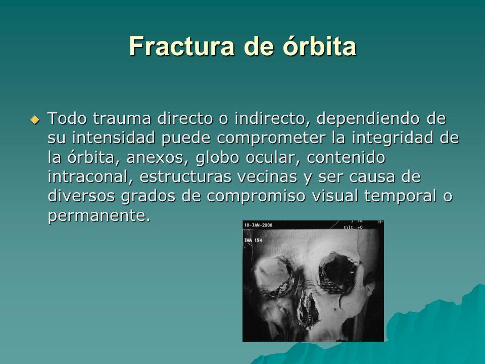 Fractura de órbita
