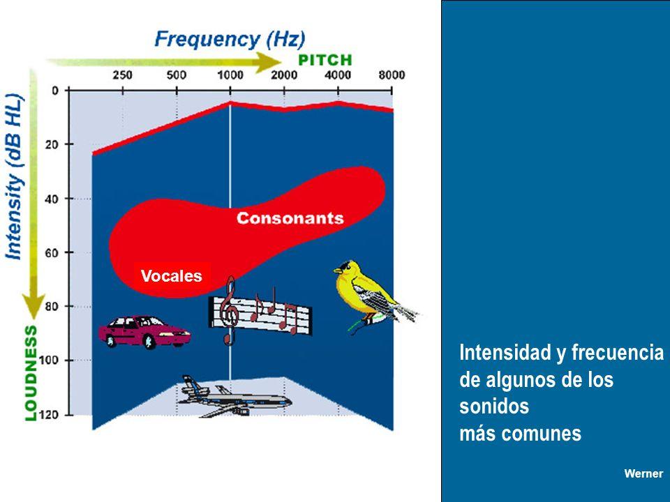 Intensidad y frecuencia de algunos de los sonidos más comunes