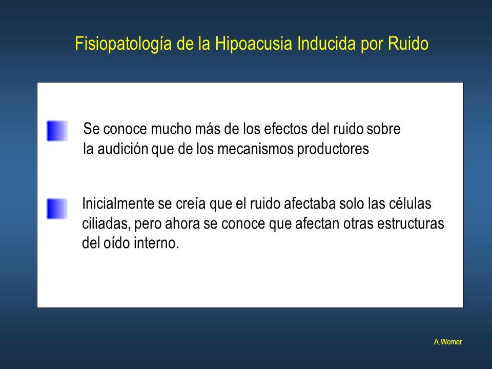 Fisiopatología de la Hipoacusia Inducida por Ruido