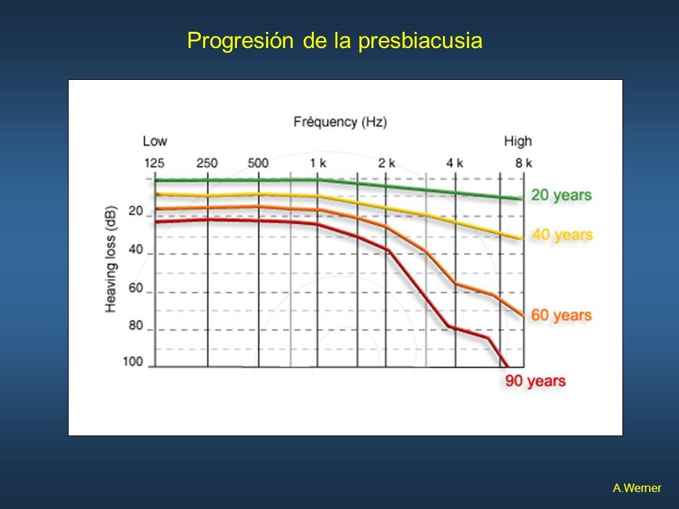 Progresión de la presbiacusia