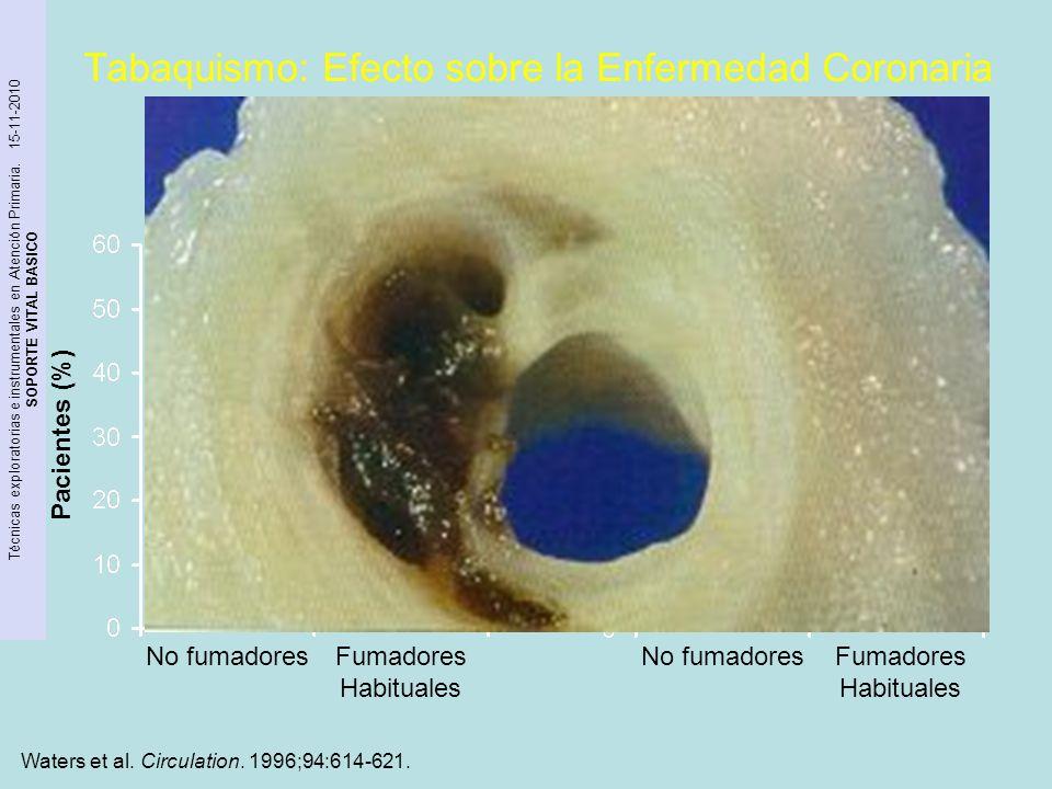 Tabaquismo: Efecto sobre la Enfermedad Coronaria