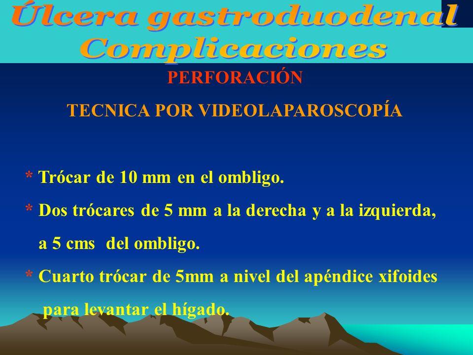 Úlcera gastroduodenal TECNICA POR VIDEOLAPAROSCOPÍA