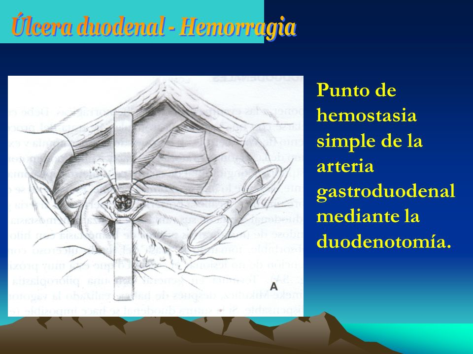 Úlcera duodenal - Hemorragia