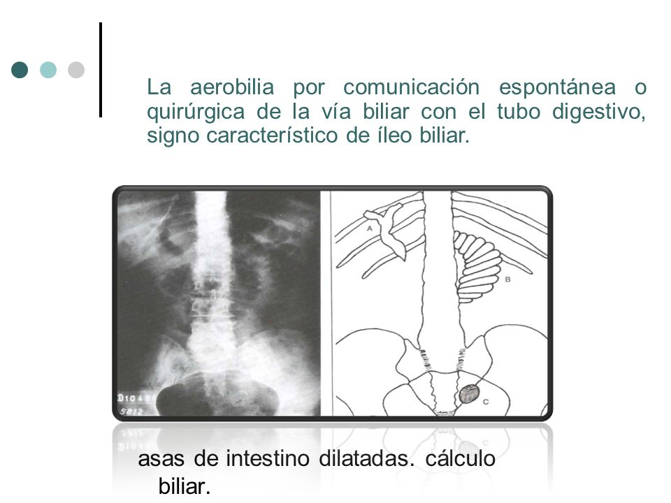 asas de intestino dilatadas. cálculo biliar.