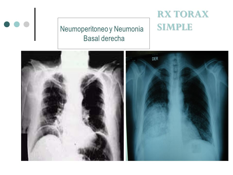 RX TORAX SIMPLE Neumoperitoneo y Neumonia Basal derecha