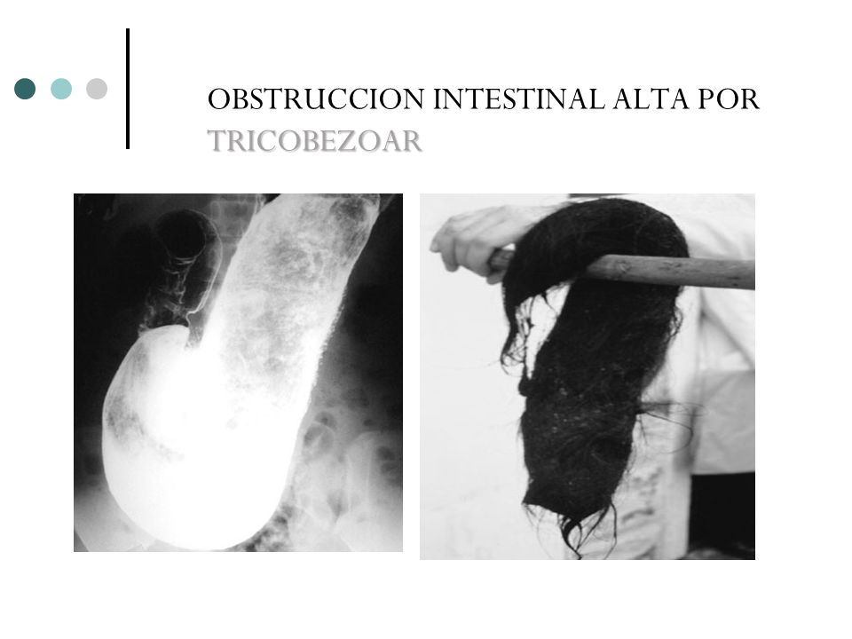 OBSTRUCCION INTESTINAL ALTA POR TRICOBEZOAR
