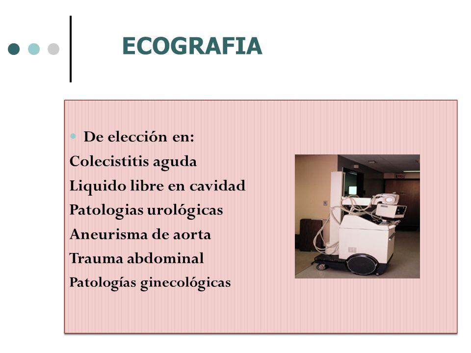 ECOGRAFIA De elección en: Colecistitis aguda Liquido libre en cavidad