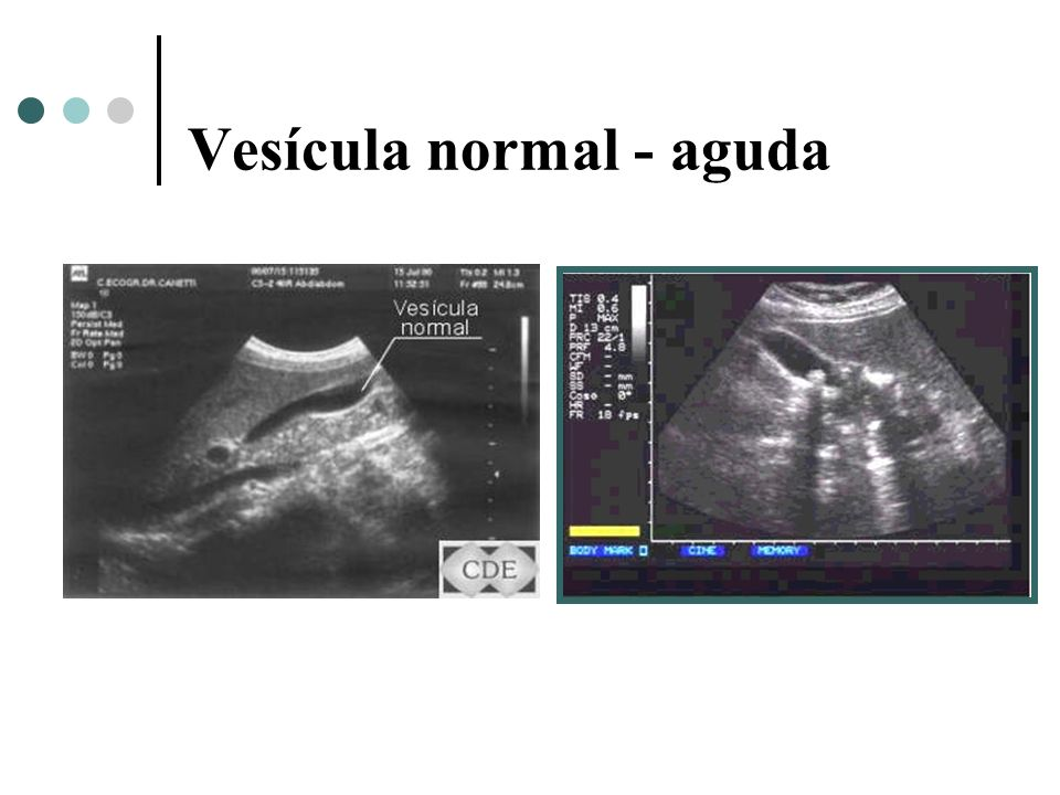 Vesícula normal - aguda