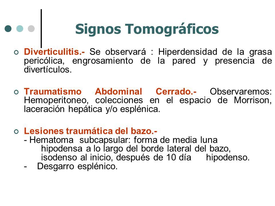 Signos Tomográficos Diverticulitis.- Se observará : Hiperdensidad de la grasa pericólica, engrosamiento de la pared y presencia de divertículos.
