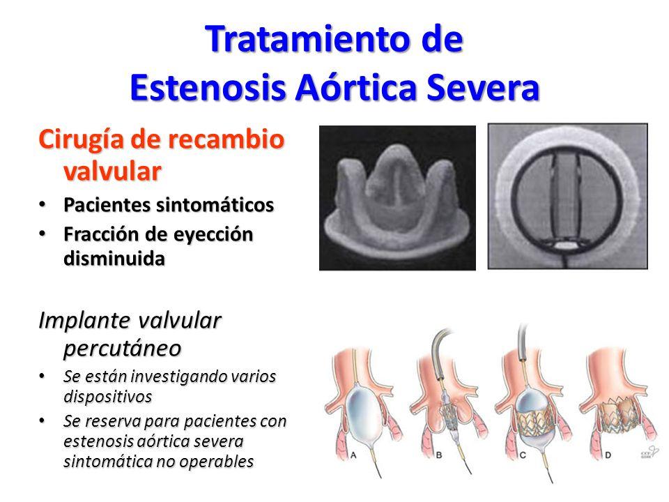 Tratamiento de Estenosis Aórtica Severa
