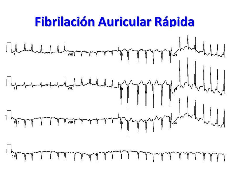 Fibrilación Auricular Rápida