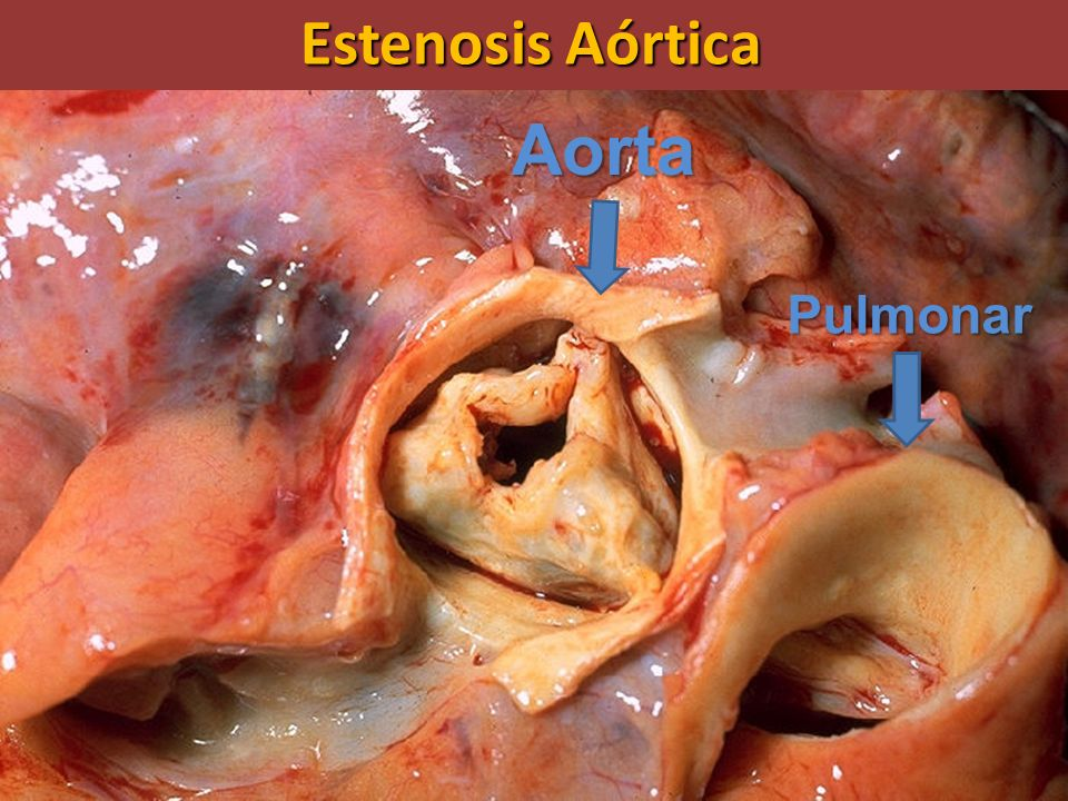 Estenosis Aórtica Aorta Pulmonar