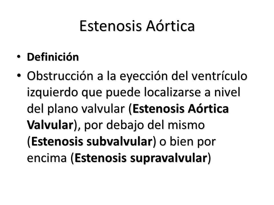 Estenosis Aórtica Definición.