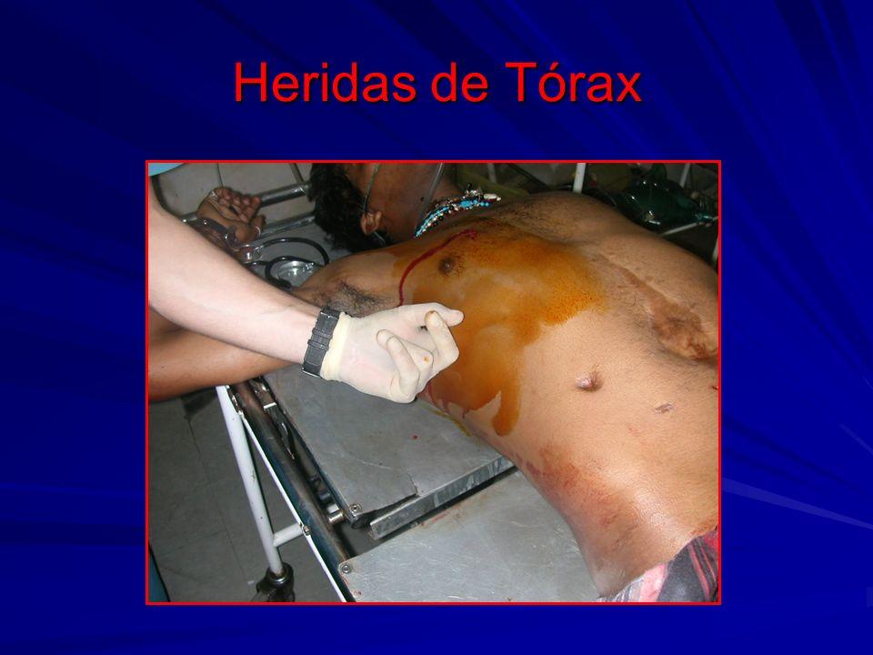 Heridas de Tórax