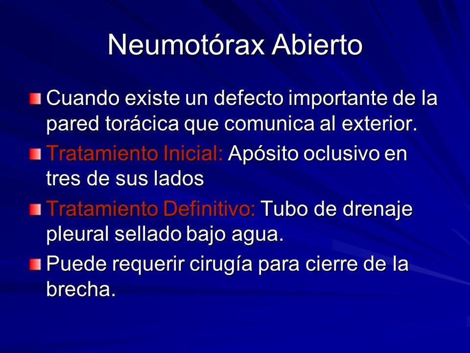 Neumotórax Abierto Cuando existe un defecto importante de la pared torácica que comunica al exterior.