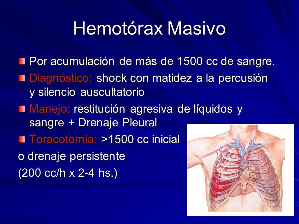 Hemotórax Masivo Por acumulación de más de 1500 cc de sangre.