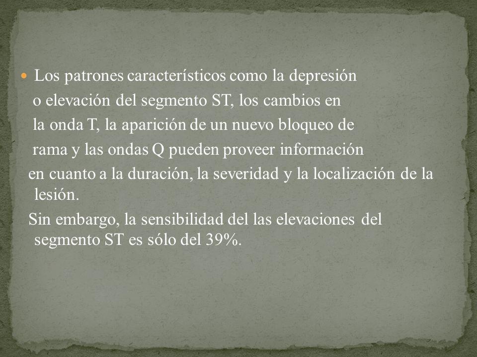 Los patrones característicos como la depresión