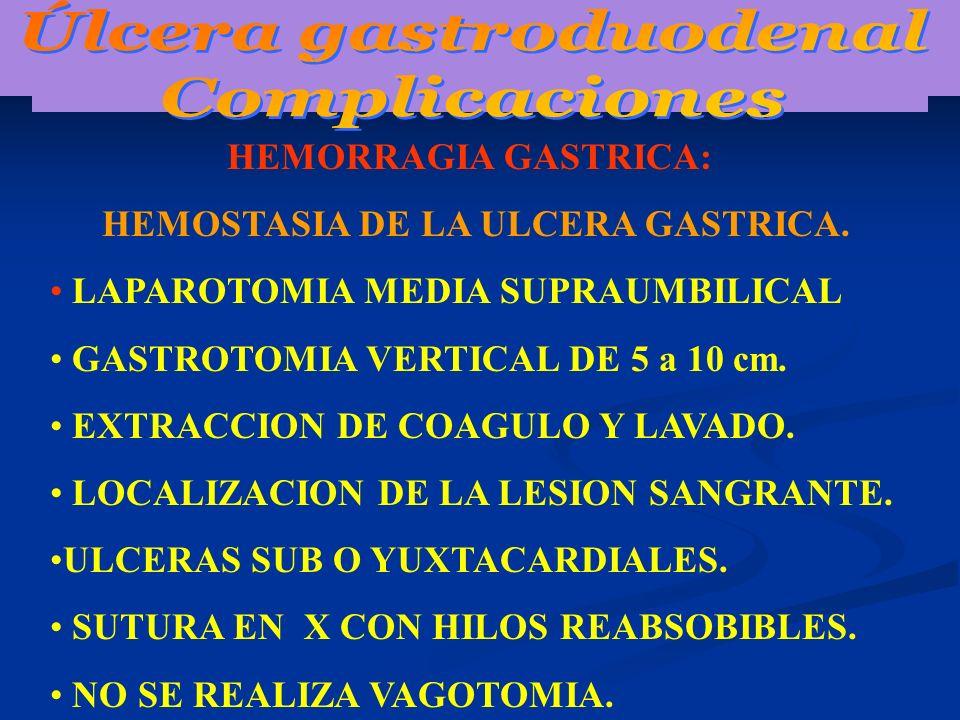 Úlcera gastroduodenal HEMOSTASIA DE LA ULCERA GASTRICA.