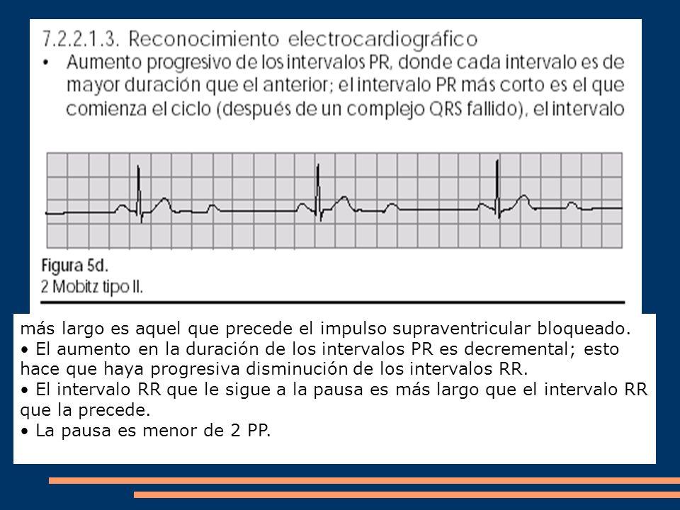 más largo es aquel que precede el impulso supraventricular bloqueado.