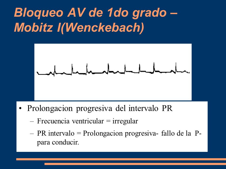 Bloqueo AV de 1do grado – Mobitz I(Wenckebach)